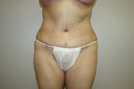 Tummy Tuck Before and After Pictures Birmingham, AL