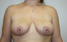 Breast Lift Before and After Pictures Birmingham, AL