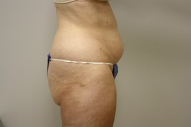 Laser Lipo with SlimLipo Before and After Pictures Birmingham, AL