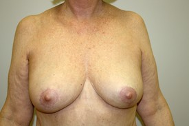 Breast Reduction Before and After Pictures Birmingham, AL