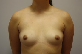 Breast Augmentation Before and After Pictures Birmingham, AL