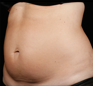 SculpSure® Before and After Pictures Birmingham, AL